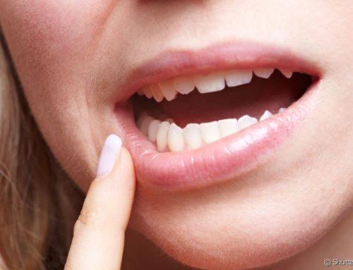 Retração gengival pode causar diastema?